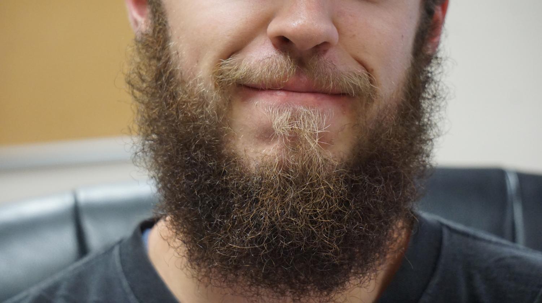 A magnificent beard.